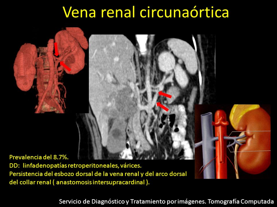 Vena renal circunaórtica