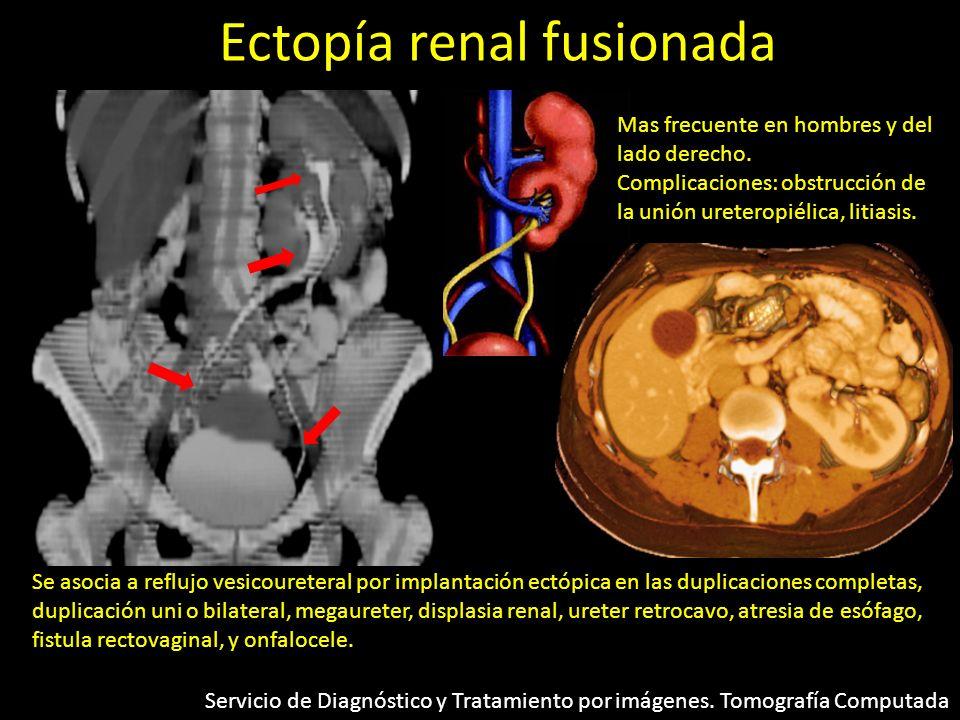 Ectopía renal fusionada