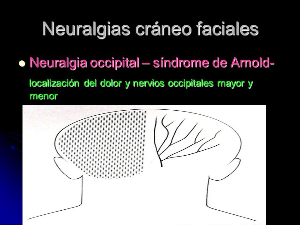 Neuralgias cráneo faciales