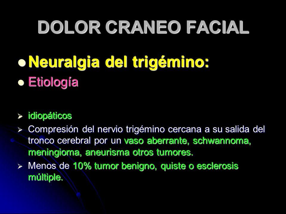 DOLOR CRANEO FACIAL Neuralgia del trigémino: Etiología idiopáticos