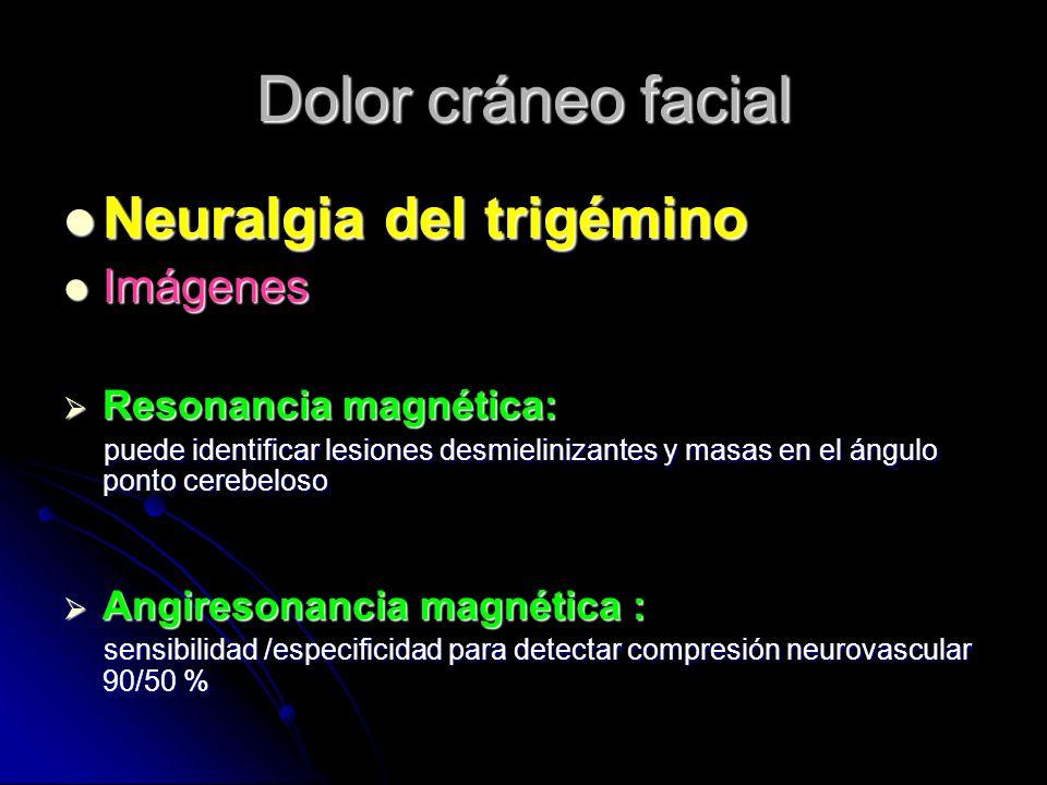 Dolor cráneo facial Neuralgia del trigémino Imágenes