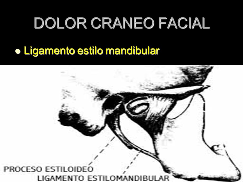 DOLOR CRANEO FACIAL Ligamento estilo mandibular