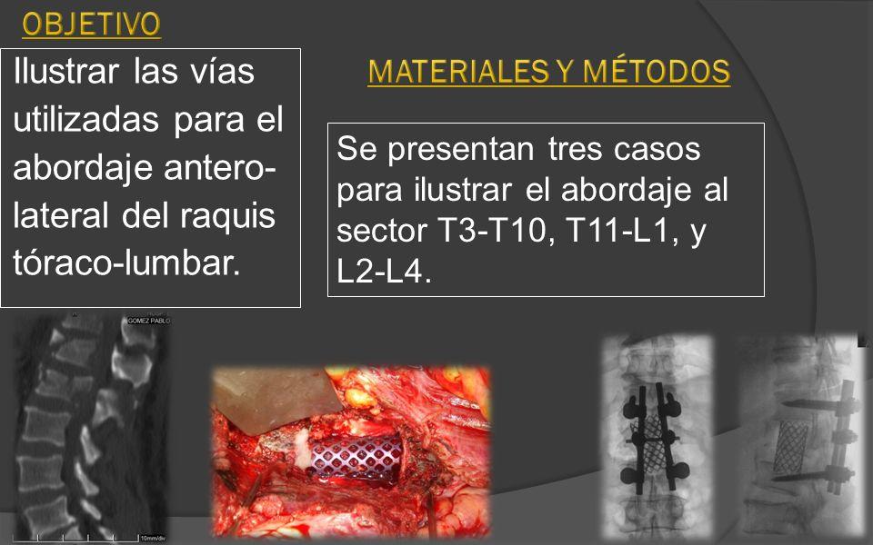 Objetivo MaterialES y Métodos. Ilustrar las vías utilizadas para el abordaje antero- lateral del raquis tóraco-lumbar.