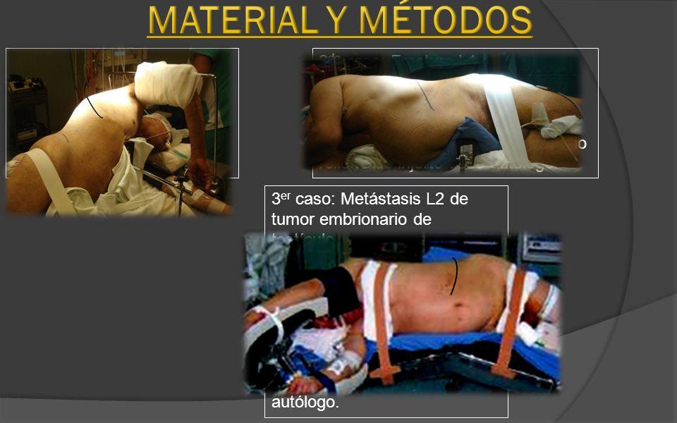 Material y Métodos 1er caso: Espondilo discitis T7-T8.