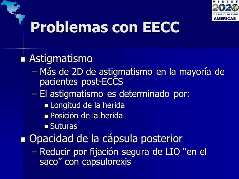 Problemas con EECC Astigmatismo Opacidad de la cápsula posterior