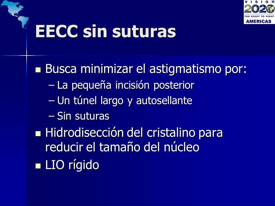 EECC sin suturas Busca minimizar el astigmatismo por: