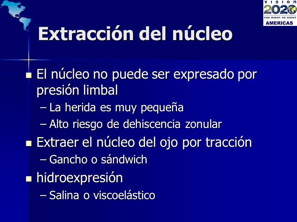 Extracción del núcleo El núcleo no puede ser expresado por presión limbal. La herida es muy pequeña.