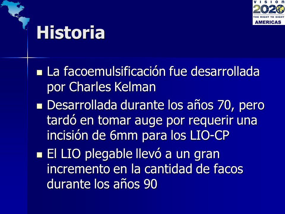 Historia La facoemulsificación fue desarrollada por Charles Kelman