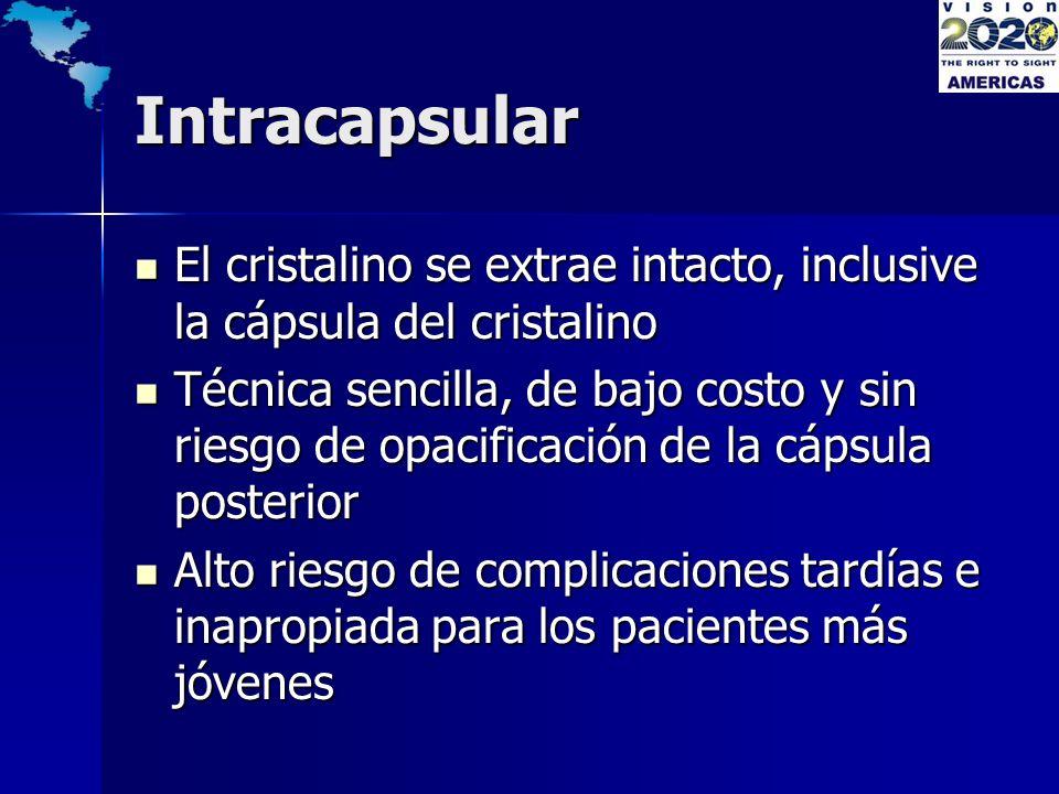 Intracapsular El cristalino se extrae intacto, inclusive la cápsula del cristalino.
