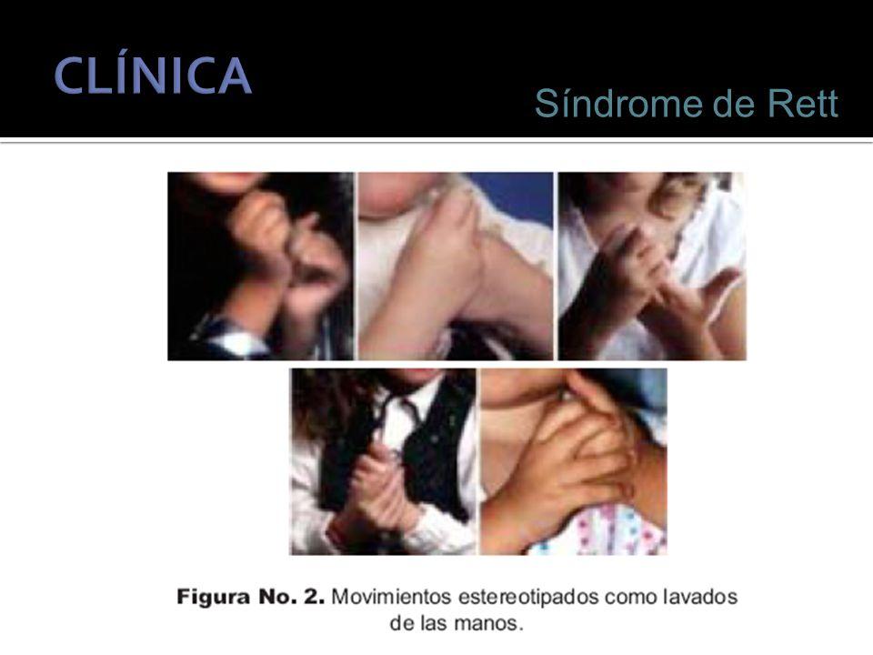 CLÍNICA Síndrome de Rett