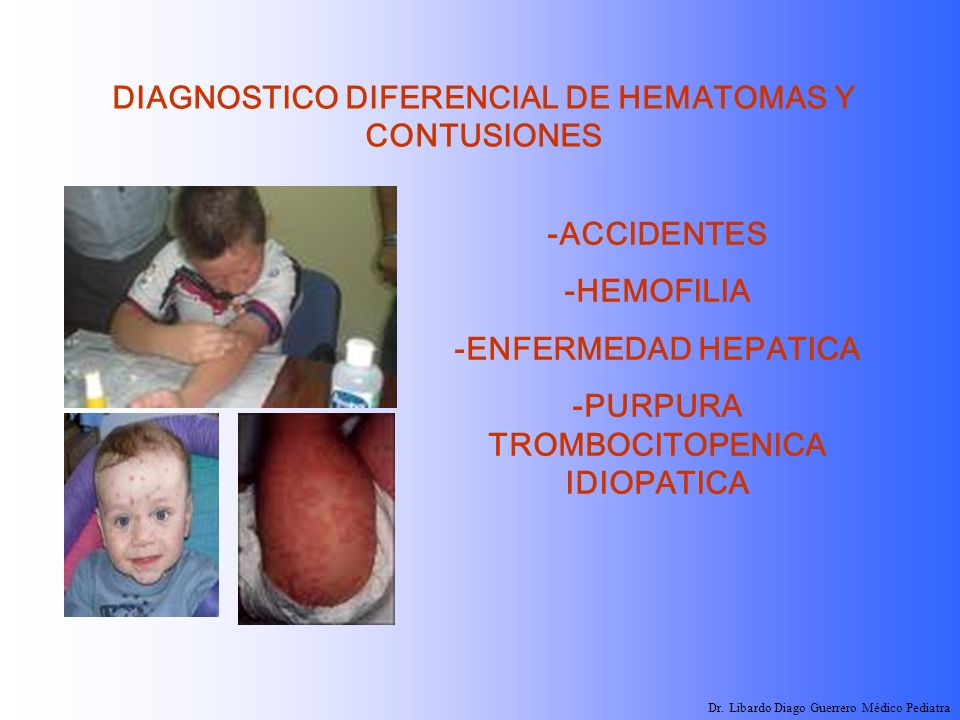 DIAGNOSTICO DIFERENCIAL DE HEMATOMAS Y CONTUSIONES