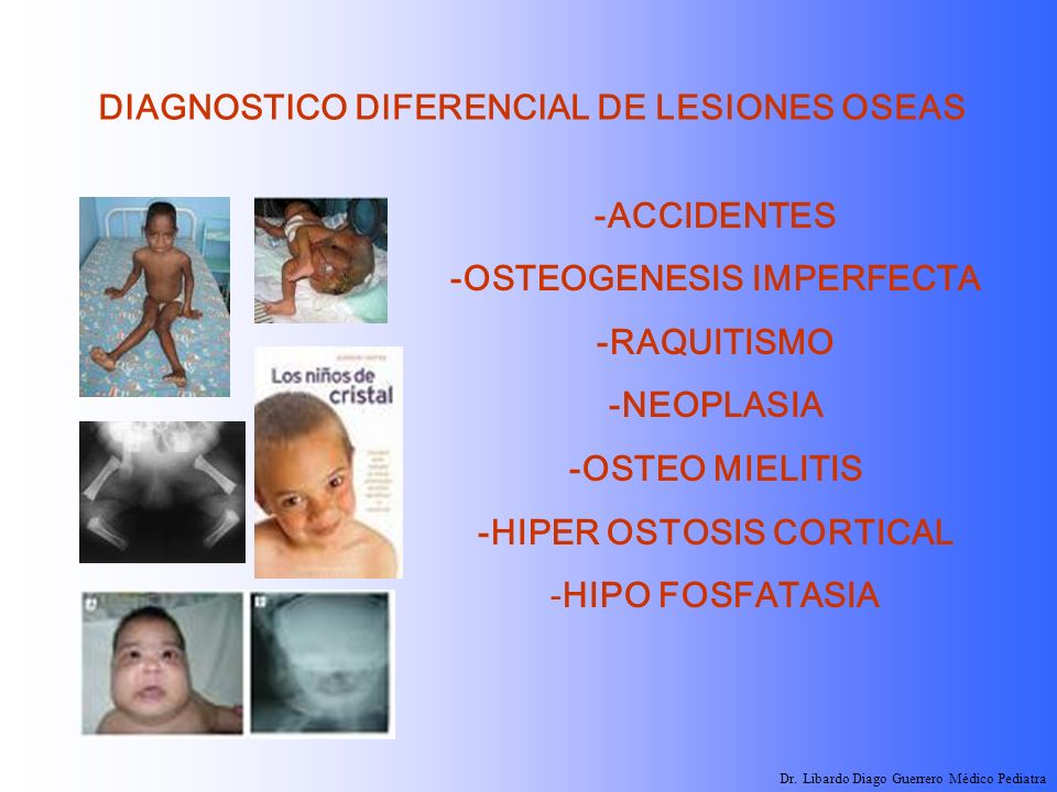 -OSTEOGENESIS IMPERFECTA -HIPER OSTOSIS CORTICAL
