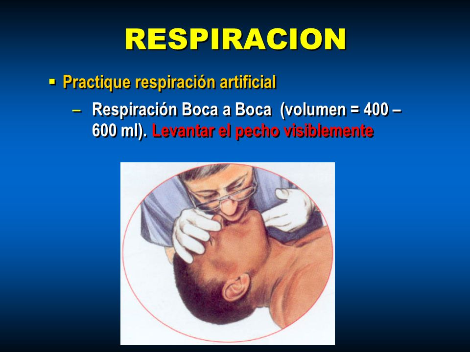 RESPIRACION Practique respiración artificial