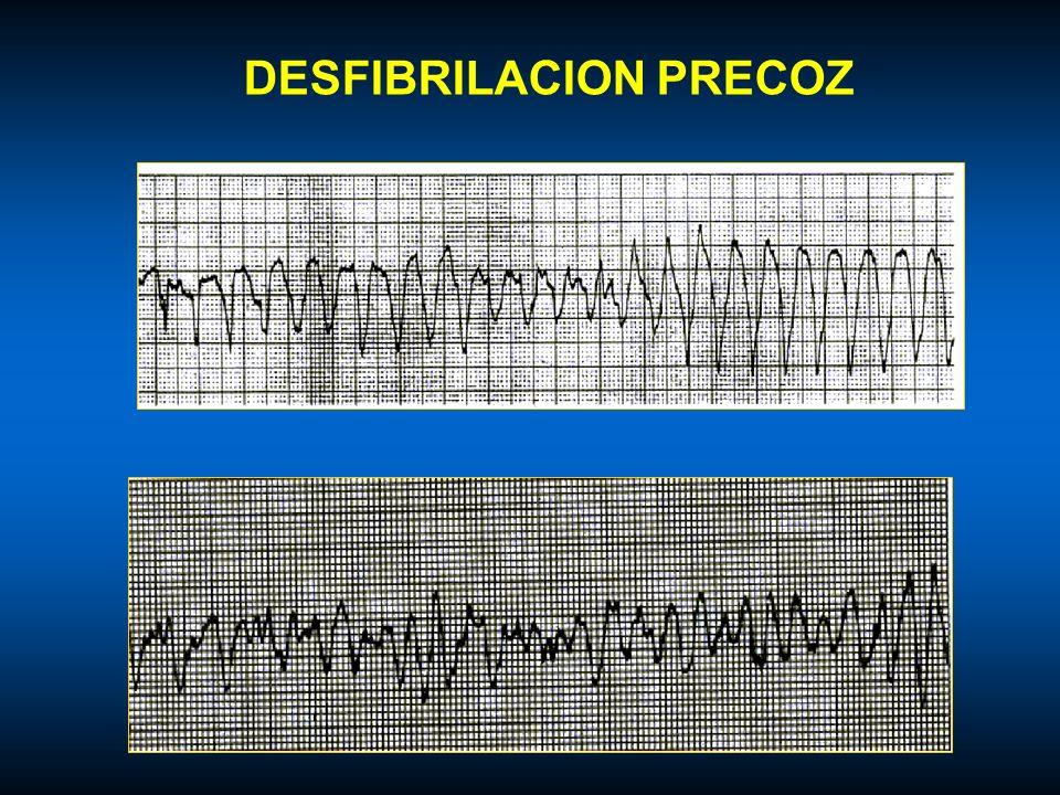 DESFIBRILACION PRECOZ