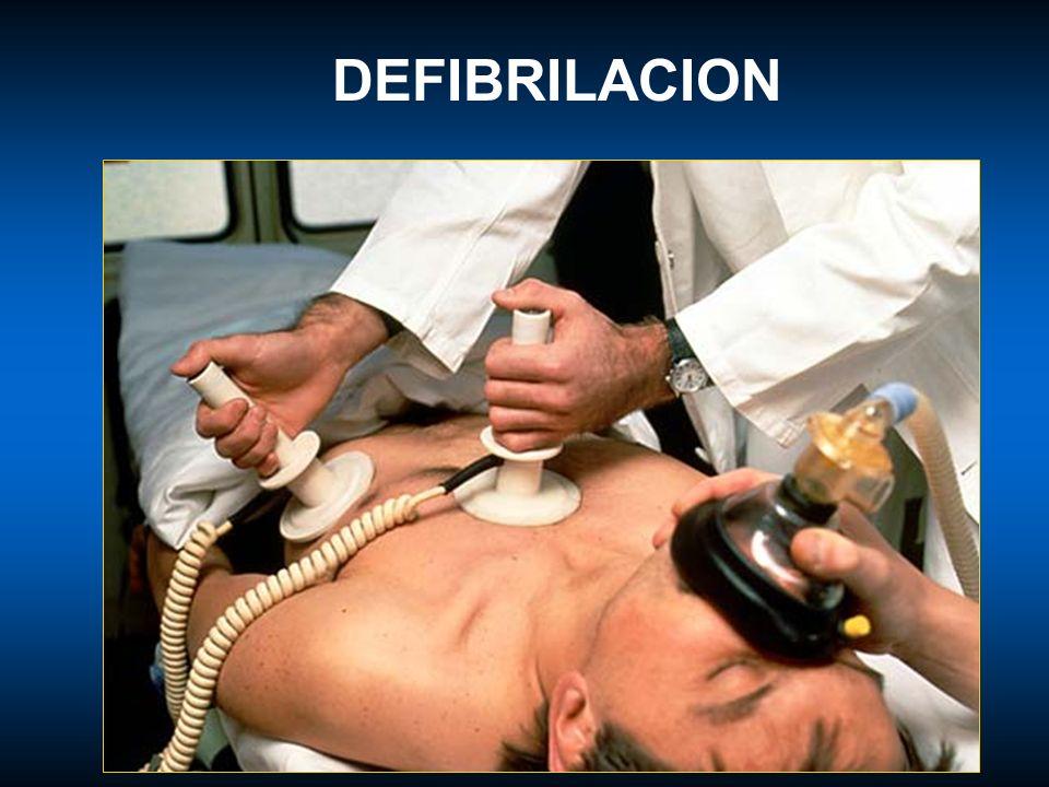 DEFIBRILACION