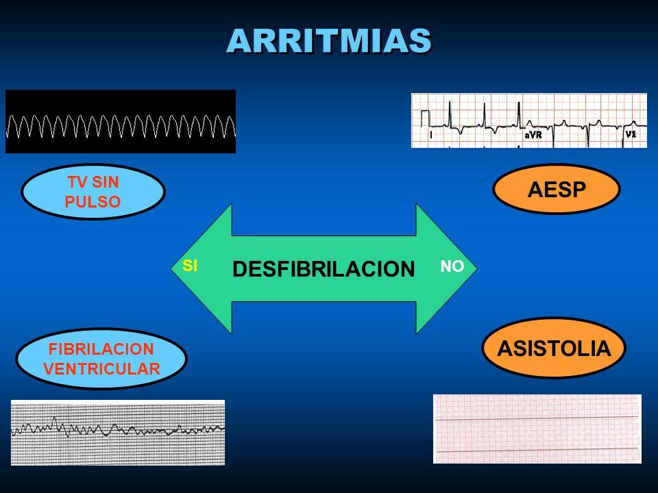 ARRITMIAS AESP DESFIBRILACION ASISTOLIA TV SIN PULSO SI NO FIBRILACION