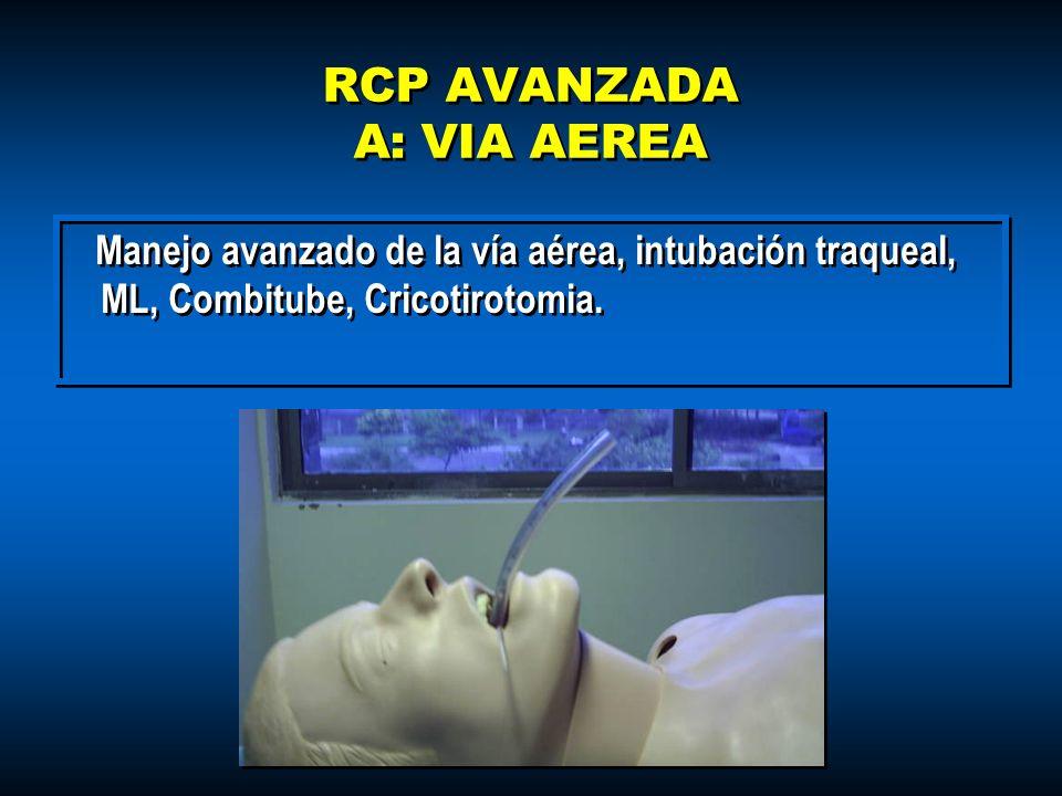 RCP AVANZADA A: VIA AEREA