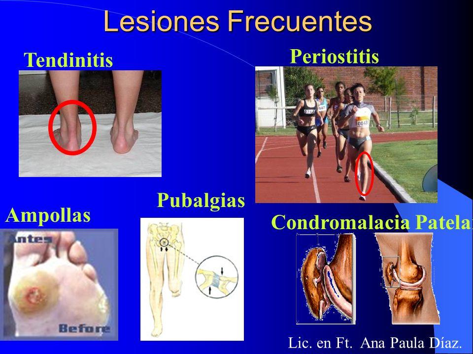 Lesiones Frecuentes Periostitis Tendinitis Pubalgias Ampollas