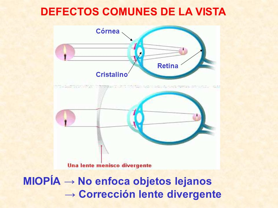 DEFECTOS COMUNES DE LA VISTA