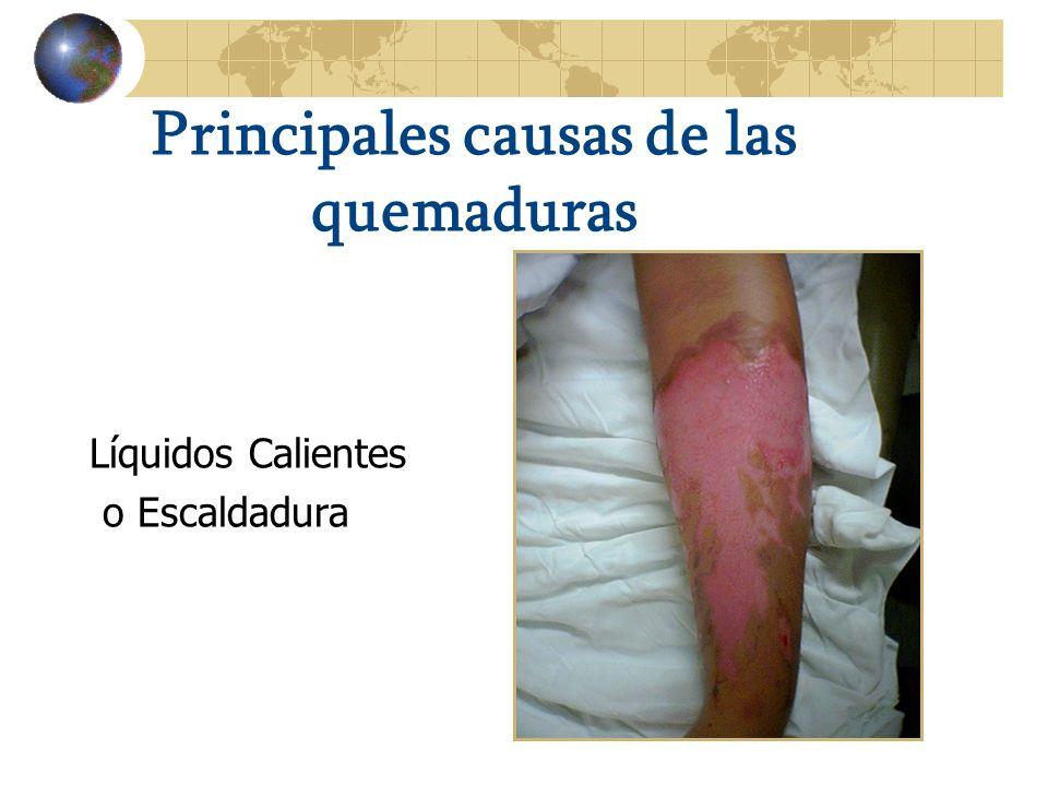 Principales causas de las quemaduras
