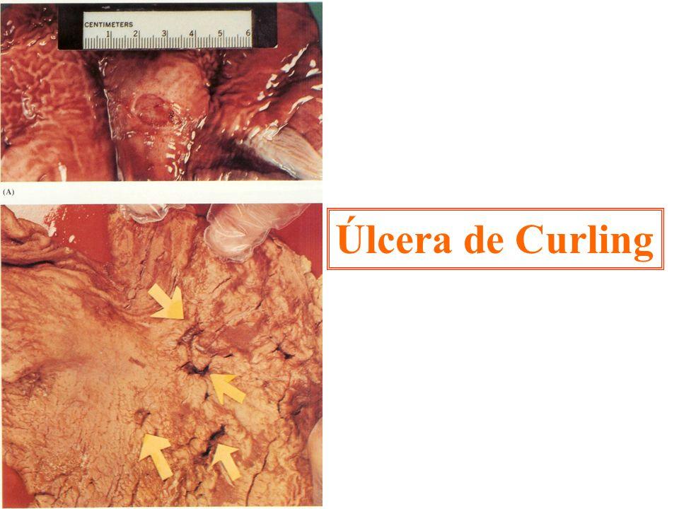 Úlcera de Curling