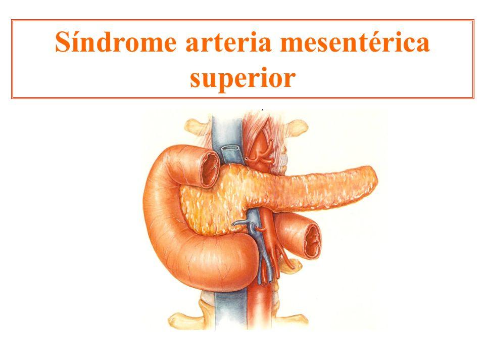 Síndrome arteria mesentérica superior