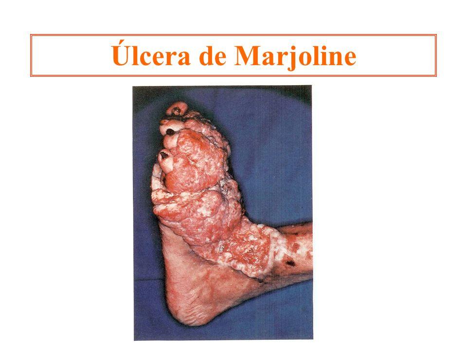 Úlcera de Marjoline