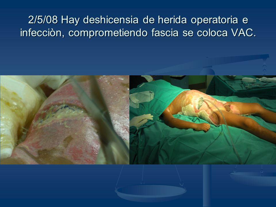 2/5/08 Hay deshicensia de herida operatoria e infecciòn, comprometiendo fascia se coloca VAC.