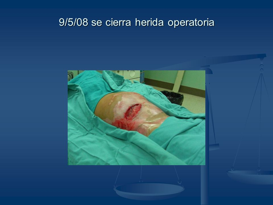 9/5/08 se cierra herida operatoria