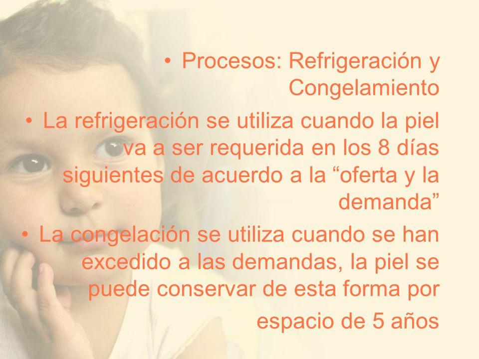 Procesos: Refrigeración y Congelamiento