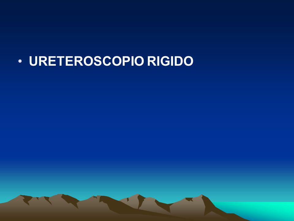 URETEROSCOPIO RIGIDO
