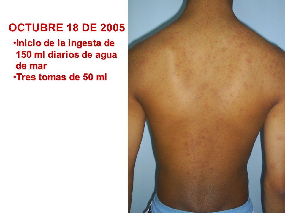 OCTUBRE 18 DE 2005 Inicio de la ingesta de 150 ml diarios de agua