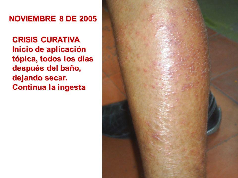 NOVIEMBRE 8 DE 2005CRISIS CURATIVA. Inicio de aplicación. tópica, todos los días. después del baño,