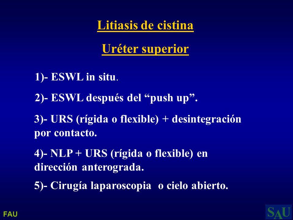 Litiasis de cistina Uréter superior