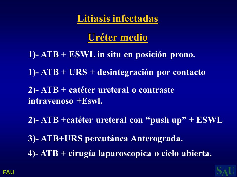 Litiasis infectadas Uréter medio