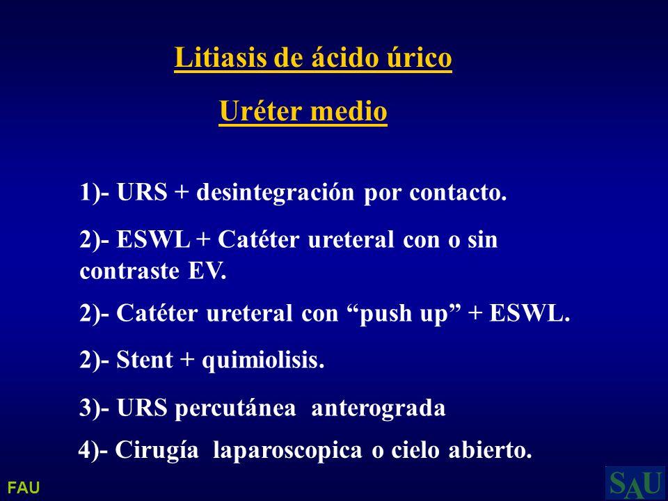 Litiasis de ácido úrico Uréter medio