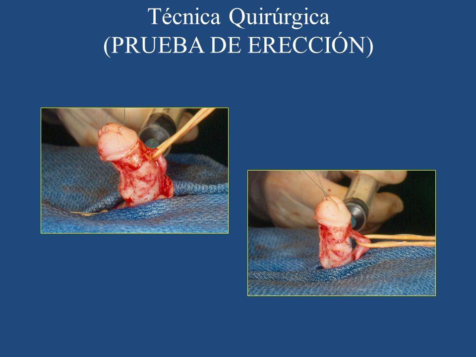 Técnica Quirúrgica (PRUEBA DE ERECCIÓN)