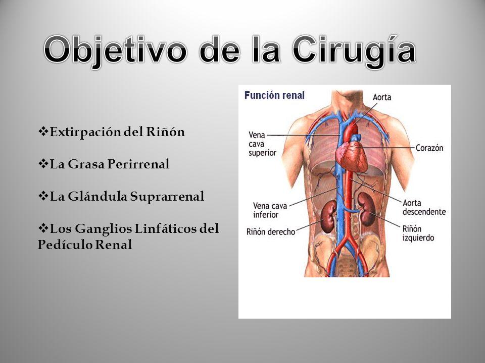 Objetivo de la Cirugía Extirpación del Riñón La Grasa Perirrenal
