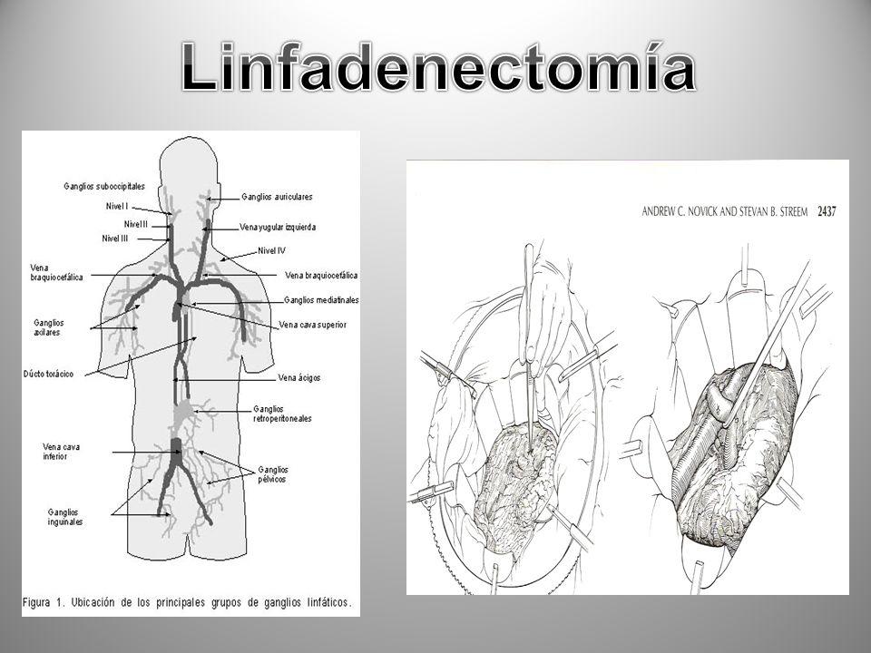 Linfadenectomía Linfadenectomía, para exponer el hileo renal