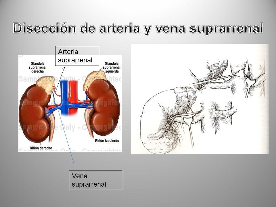 Disección de arteria y vena suprarrenal