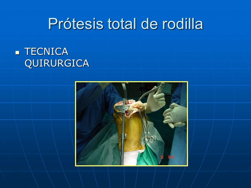 Prótesis total de rodilla