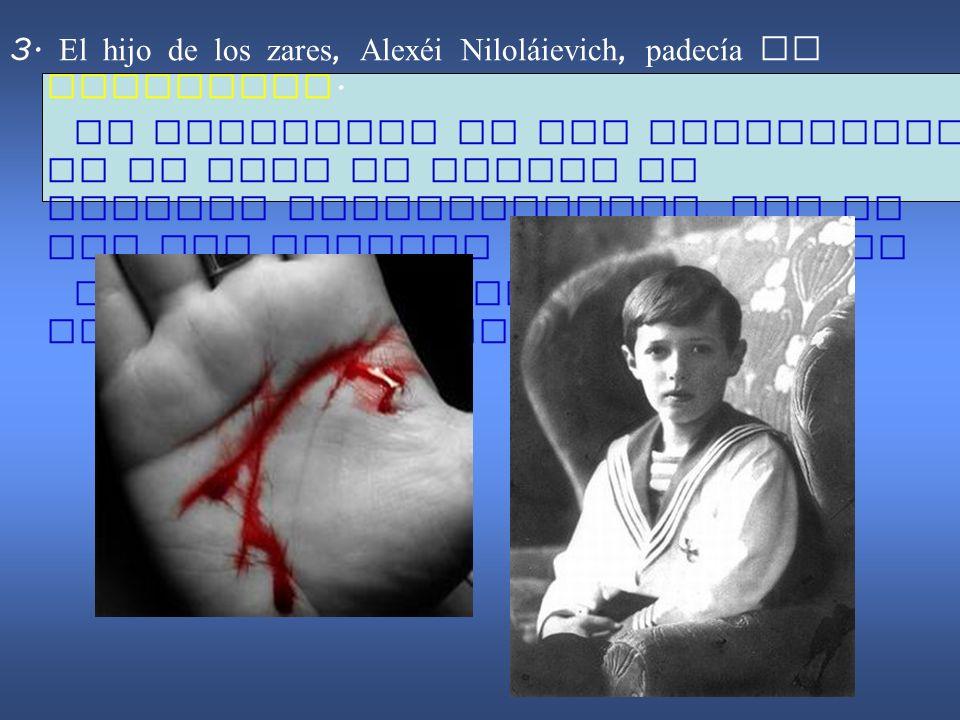 3. El hijo de los zares, Alexéi Niloláievich, padecía de hemofilia.
