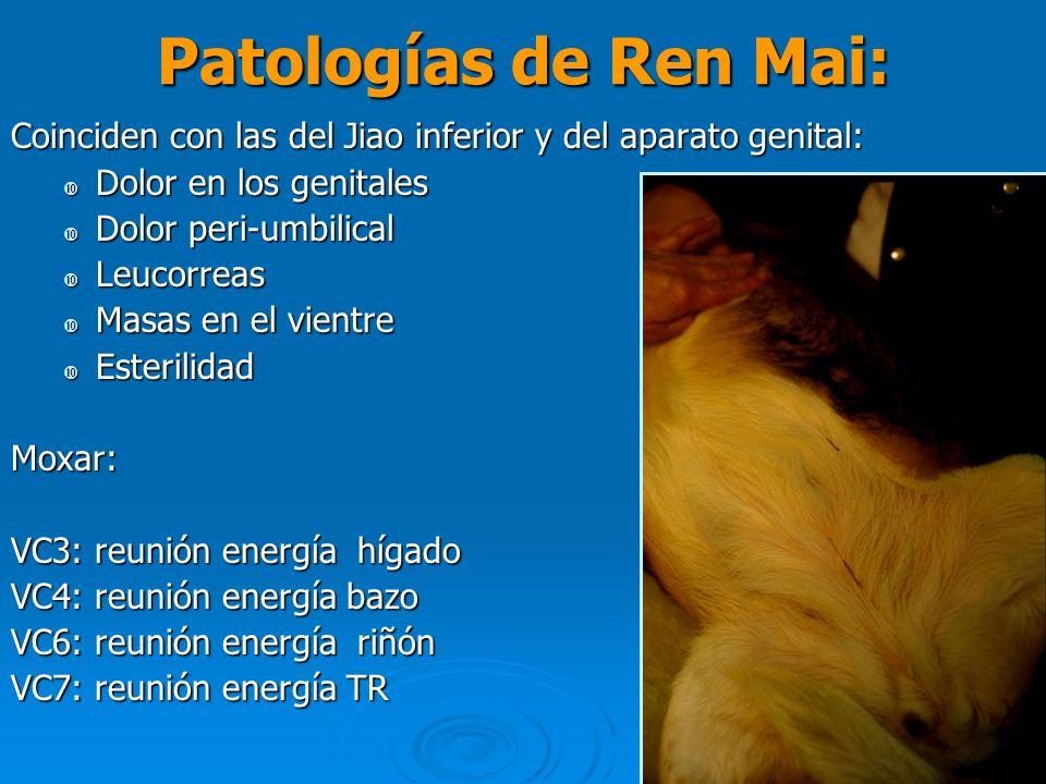 Patologías de Ren Mai: Coinciden con las del Jiao inferior y del aparato genital: Dolor en los genitales.