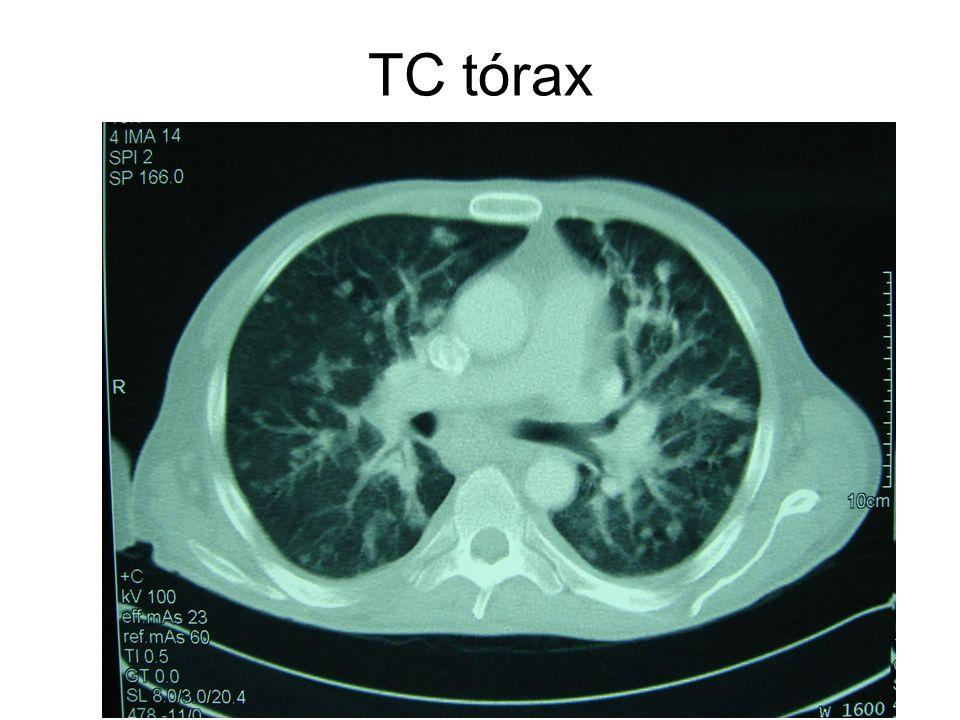 TC tórax La distribución peribroncovascular es muy típica y frecuente en el Kaposi, y no en otras neoplasias o infecciones oportunistas.