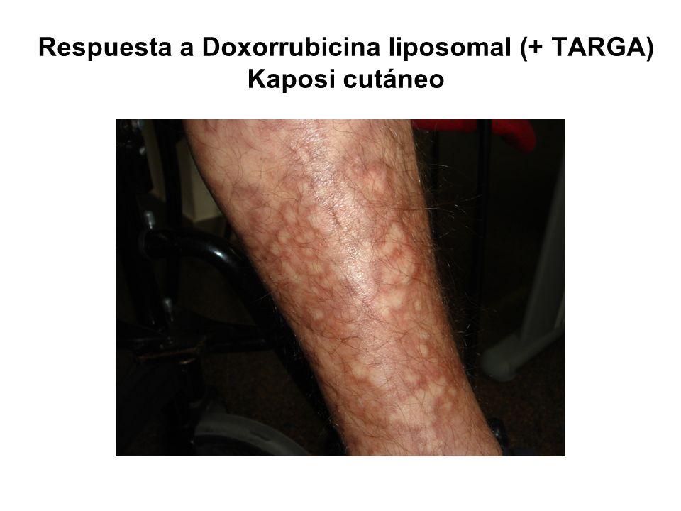 Respuesta a Doxorrubicina liposomal (+ TARGA) Kaposi cutáneo