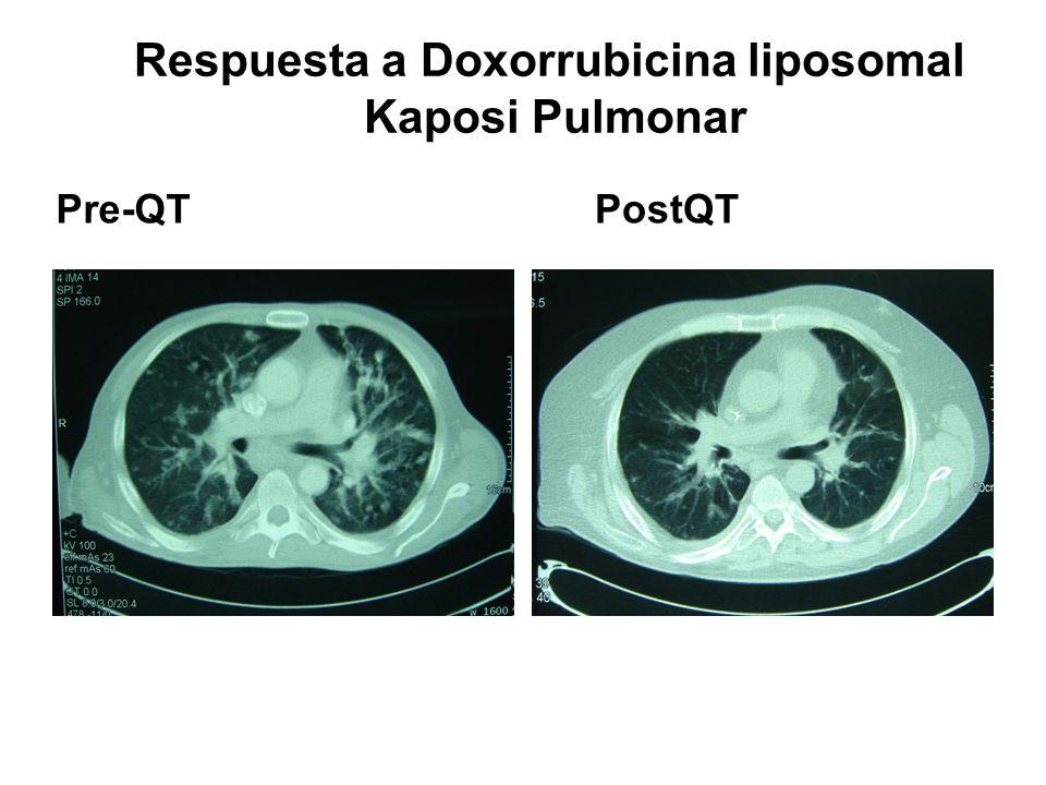 Respuesta a Doxorrubicina liposomal Kaposi Pulmonar