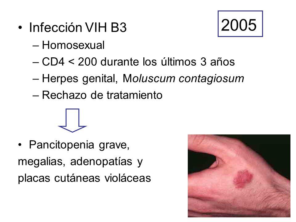 2005 Infección VIH B3 Homosexual