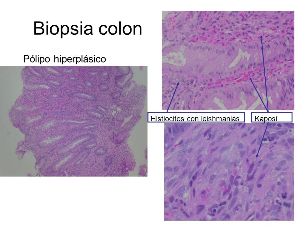 Biopsia colon Pólipo hiperplásico Histiocitos con leishmanias Kaposi