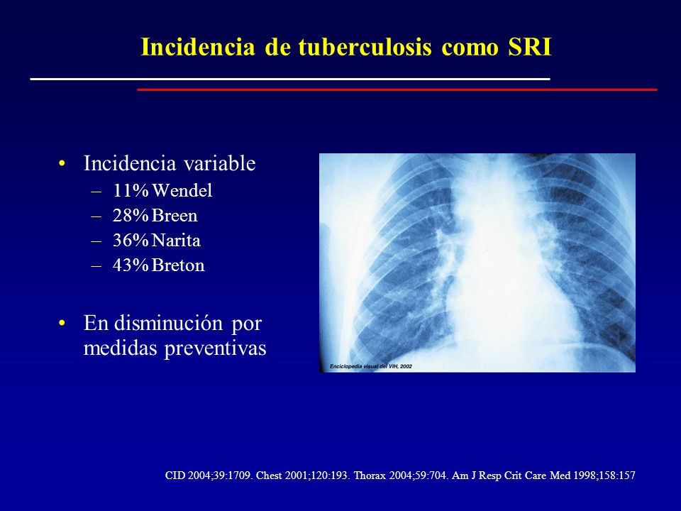 Incidencia de tuberculosis como SRI