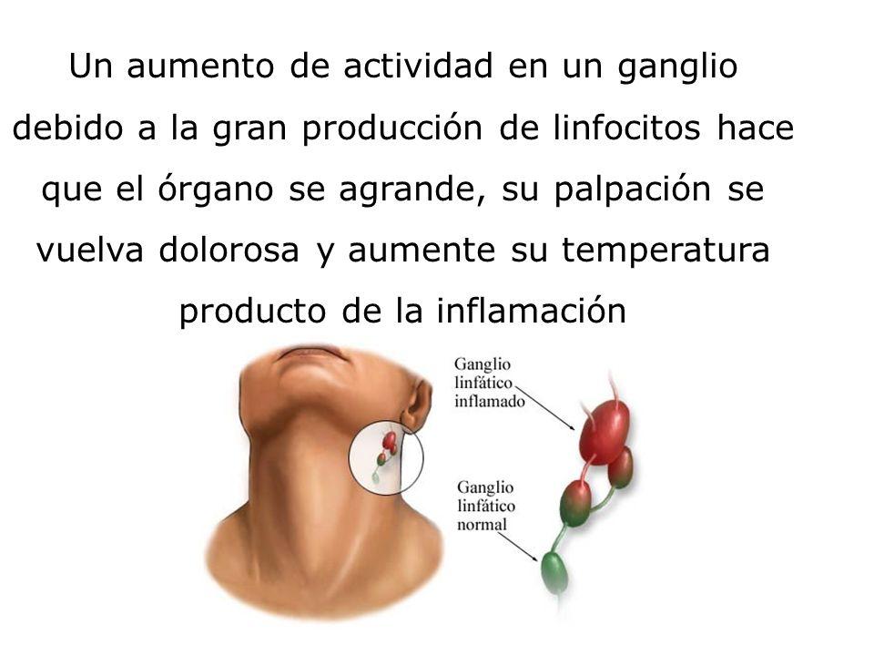 Un aumento de actividad en un ganglio debido a la gran producción de linfocitos hace que el órgano se agrande, su palpación se vuelva dolorosa y aumente su temperatura producto de la inflamación